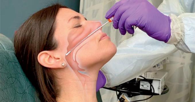 हेर्नुहोस कोरोना को nasal swab लिने तरिका